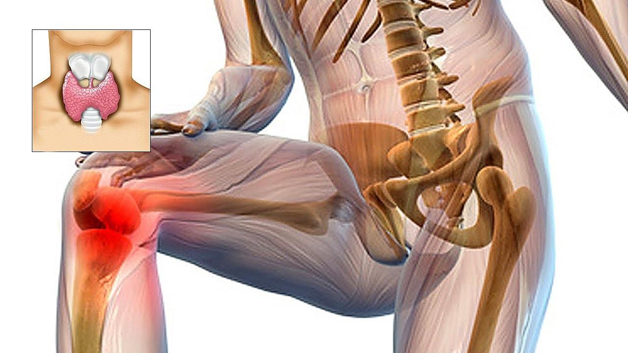 dureri articulare cu boala tiroidă)