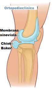 dureri de calic la nivelul articulației genunchiului