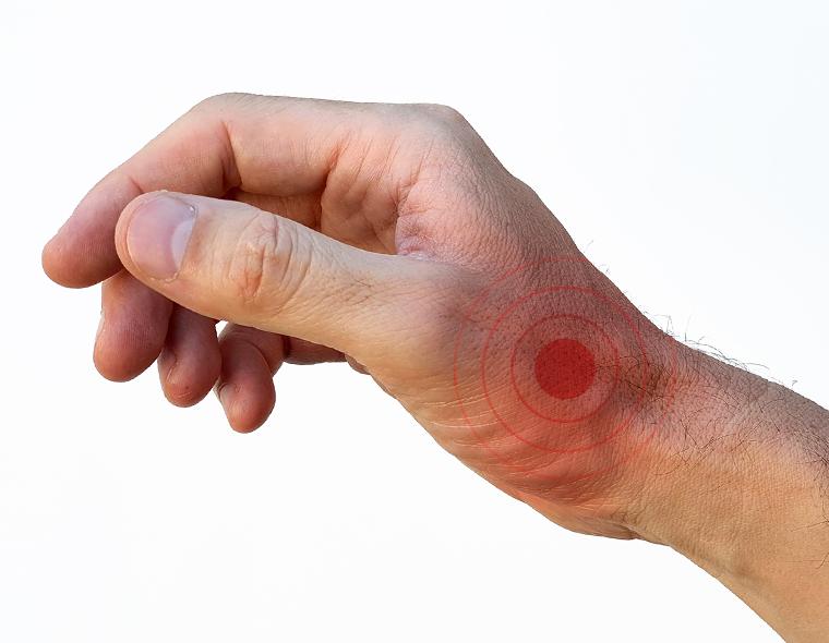 dureri la încheietura mâinii datorate traumatismelor)