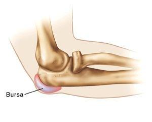 bursita seroasă a tratamentului articulației cotului)
