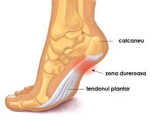 deteriorarea tendoanelor gleznei