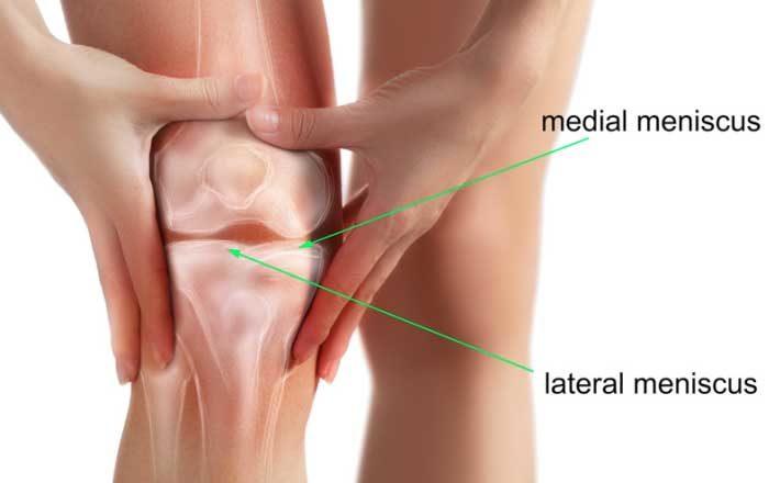 Inflamația meniscului simptomelor genunchiului Durerile de genunchi: simptome, cauze si tratament