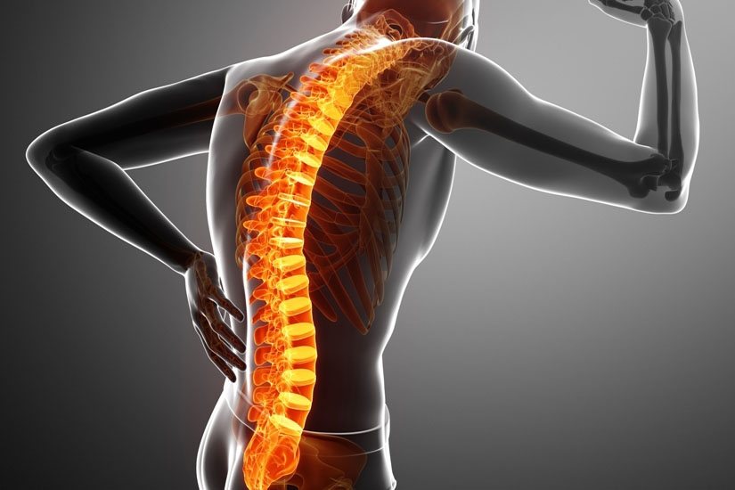 dureri severe la nivelul articulațiilor și spatelui