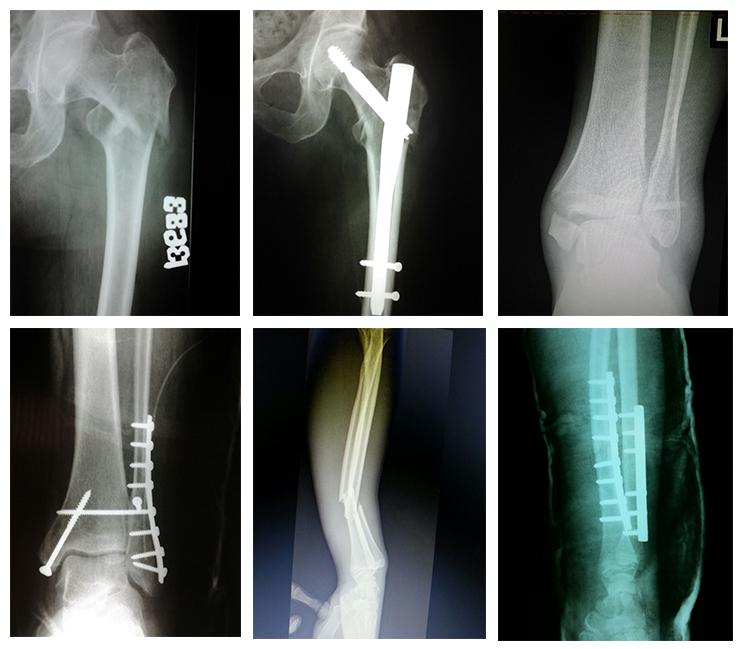 tratament pentru articulațiile mâinilor după fractură
