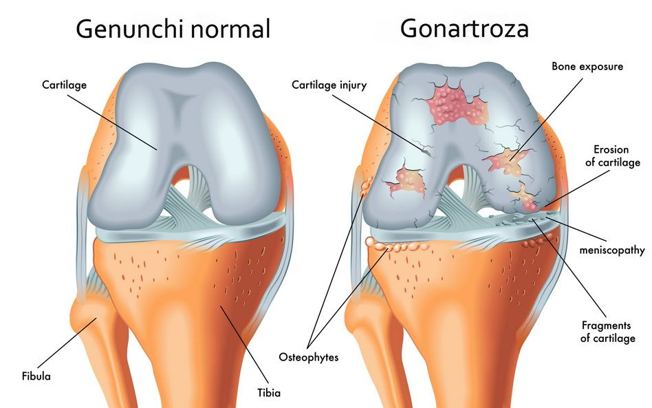 ecografie în tratamentul artrozei genunchiului)