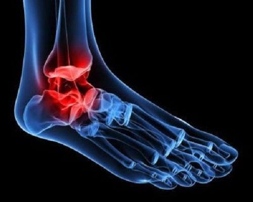 boli ale articulațiilor pelvisului și gleznei)