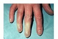 Boli ale complexelor imune și țesutului conjunctiv Lupus eritematos sistemic