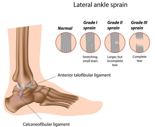 entorsa tendoanelor articulațiilor umărului simptome și tratament