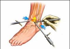 Este tratată artroza articulației gleznei)