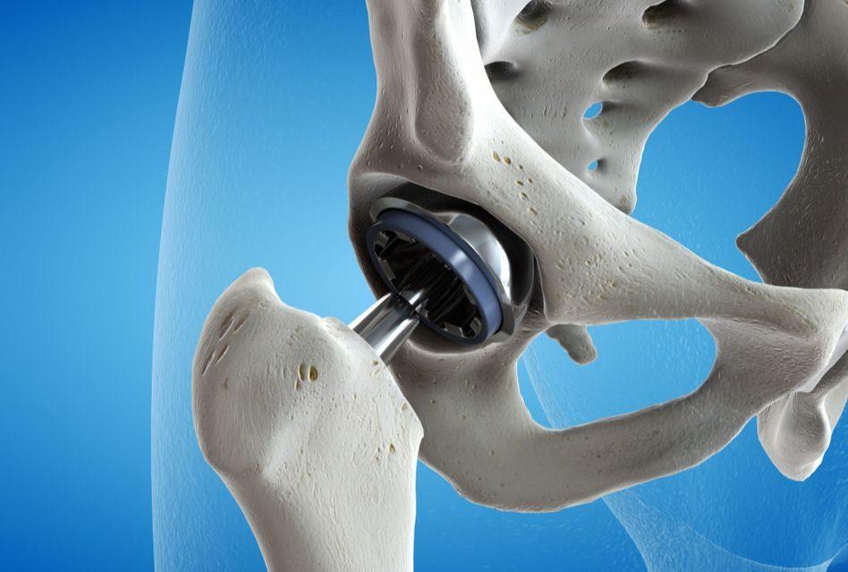 exercițiu de tratament cu artroza șoldului