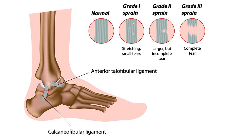 edem al tratamentului articulației gleznei