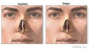 cartilajul nasului)