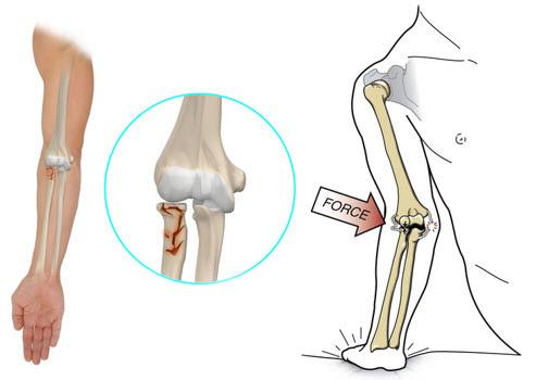 fracturi și leziuni ale articulației cotului)