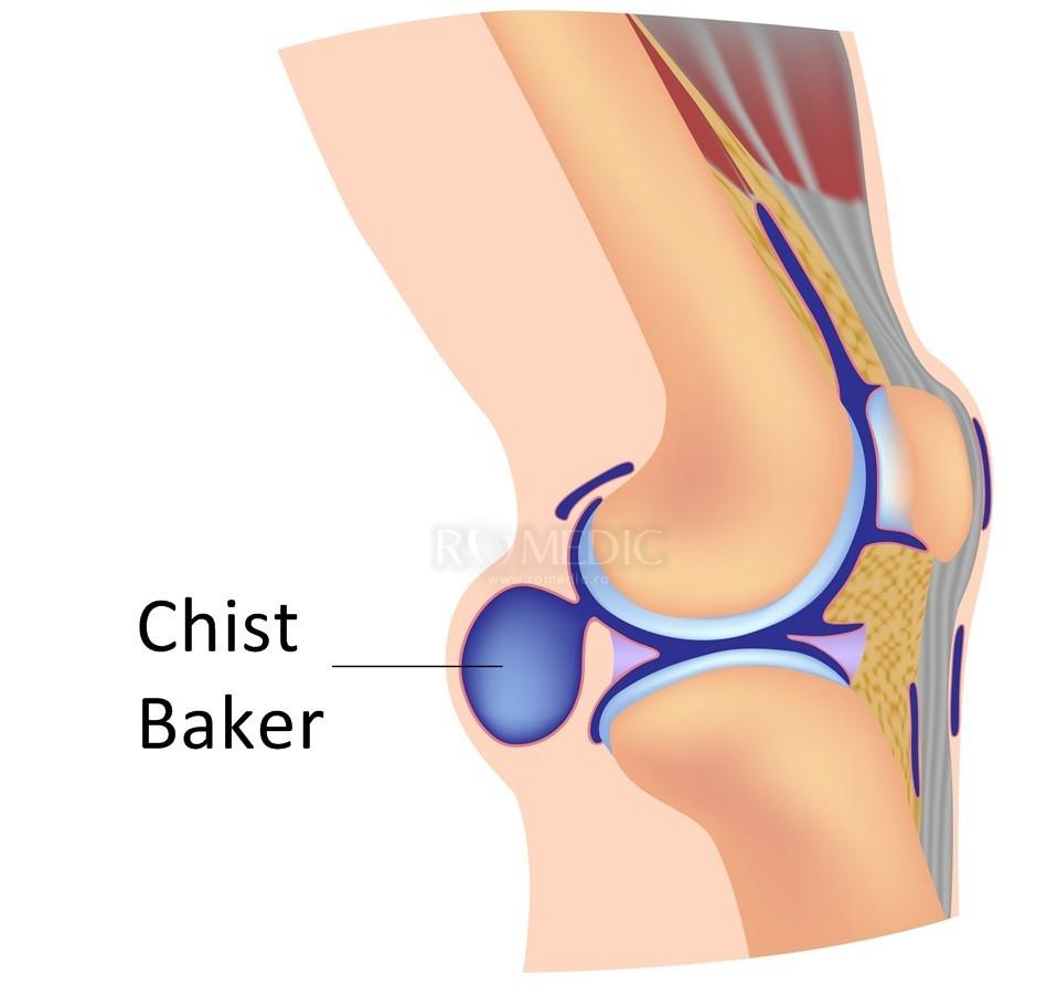 genunchii răniți deasupra articulației)