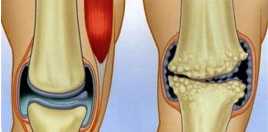 gimnastica si dureri articulare durere articulară umăr tratamentul degetelor