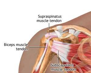 inflamația tendonului în articulația umărului)