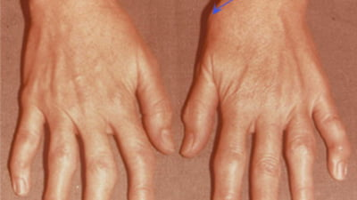 inflamație articulară pe deget cum să trateze)