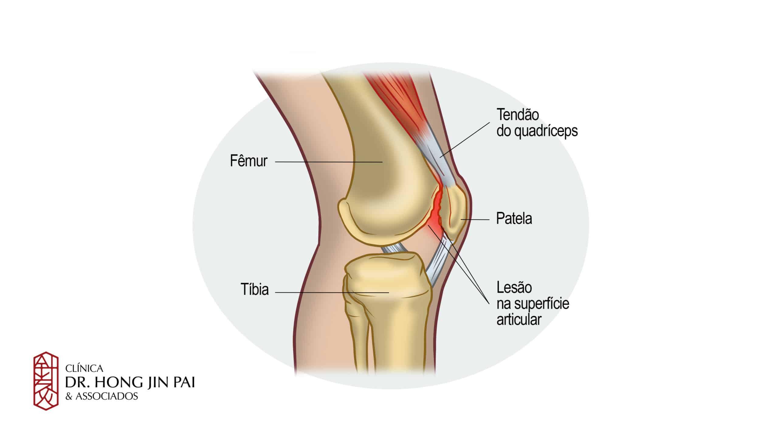 Inflamație purulentă a articulației gleznei. Principalele motive