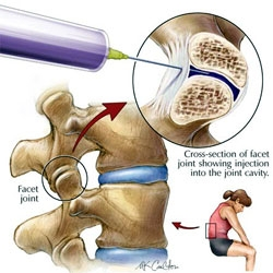 injecție de durere articulară