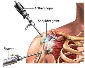 Instrumente pentru tratamentul articulației umărului