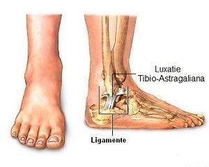 luxația durerii la nivelul picioarelor în articulație comprimați cu dimexid pentru dureri articulare