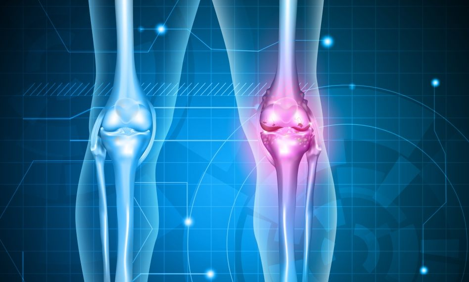 medicamente pentru gonartroza genunchiului groapă gelatină pentru dureri articulare