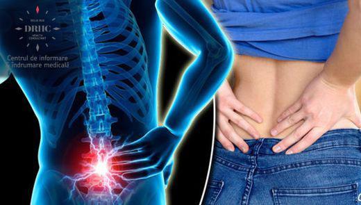 medicamente pentru tratarea coloanei vertebrale și articulațiilor cum se manifestă artrita degetelor de la picioare
