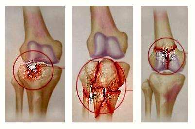 metode fizioterapeutice pentru tratamentul artrozei genunchiului