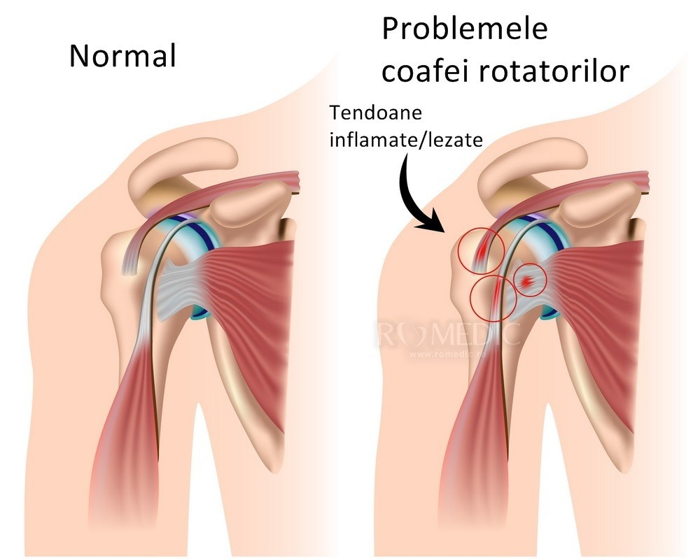 dureri articulare la mers și scurtă respirație cauza durerii de șold și tratament