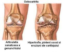 durere în articulațiile degetului medicamente pentru dureri articulare de genunchi injecții