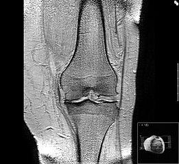 osteoartroza tratament articular)
