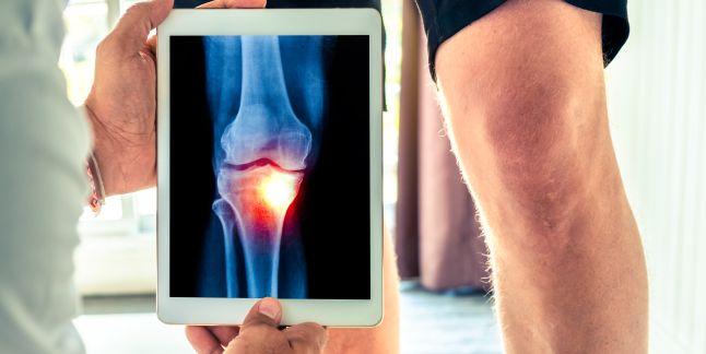 osteoporoza simptomelor și tratamentului articulației genunchiului