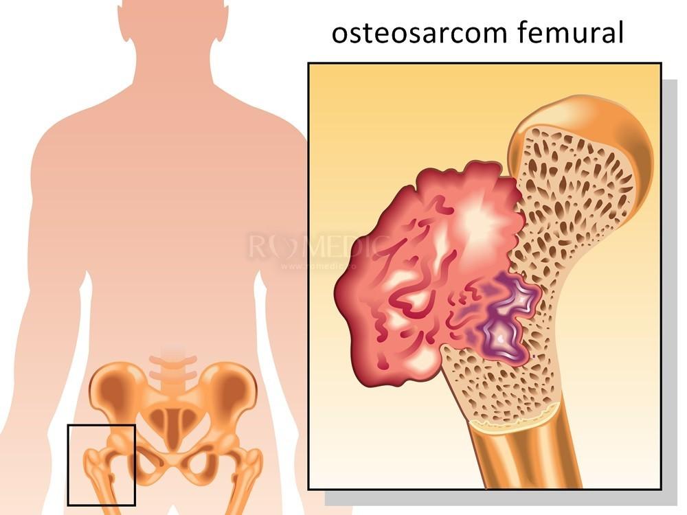 patologia bolii neuromusculare a articulației șoldului