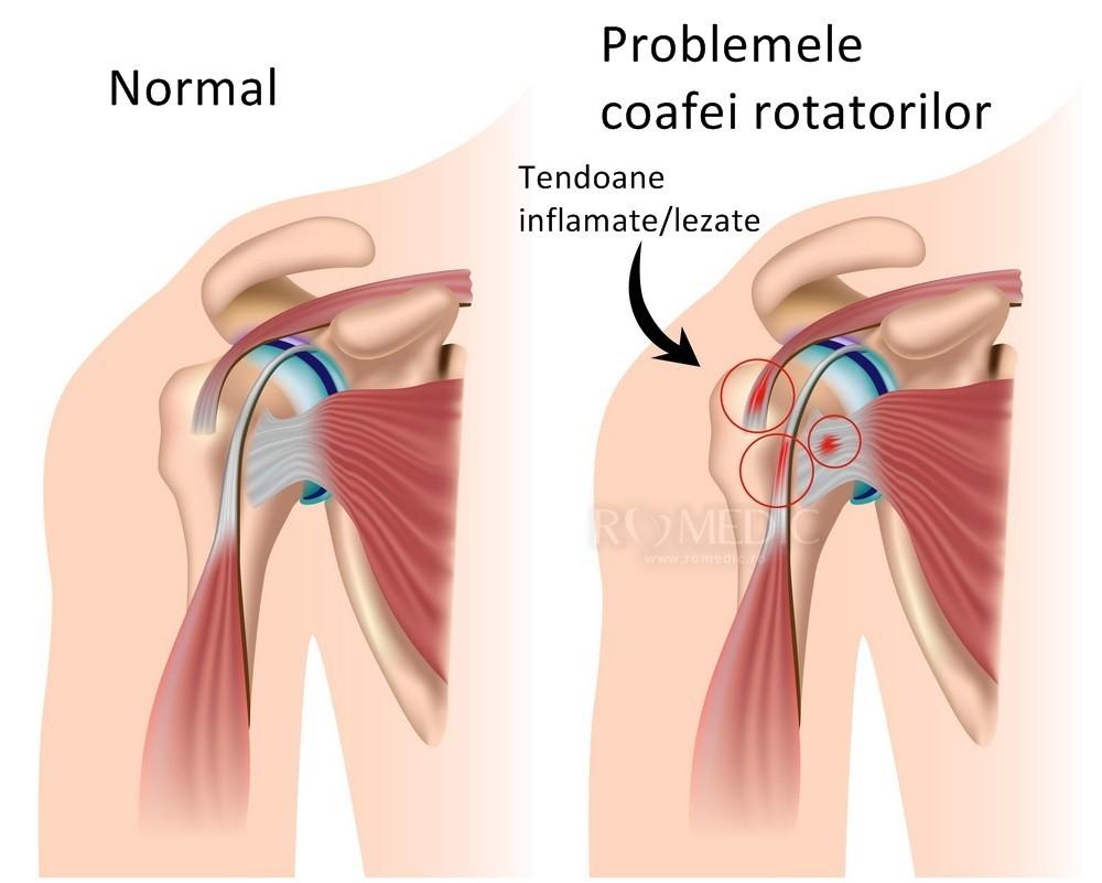 periartrita humeroscapulară a simptomelor și tratamentului articulației umărului
