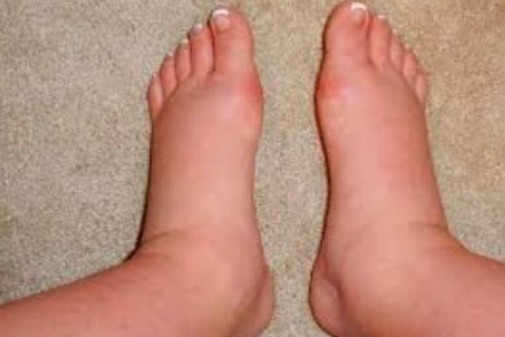 picioare dureroase si umflate