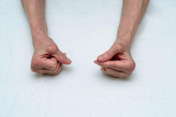 Poliartrită reumatoidă)