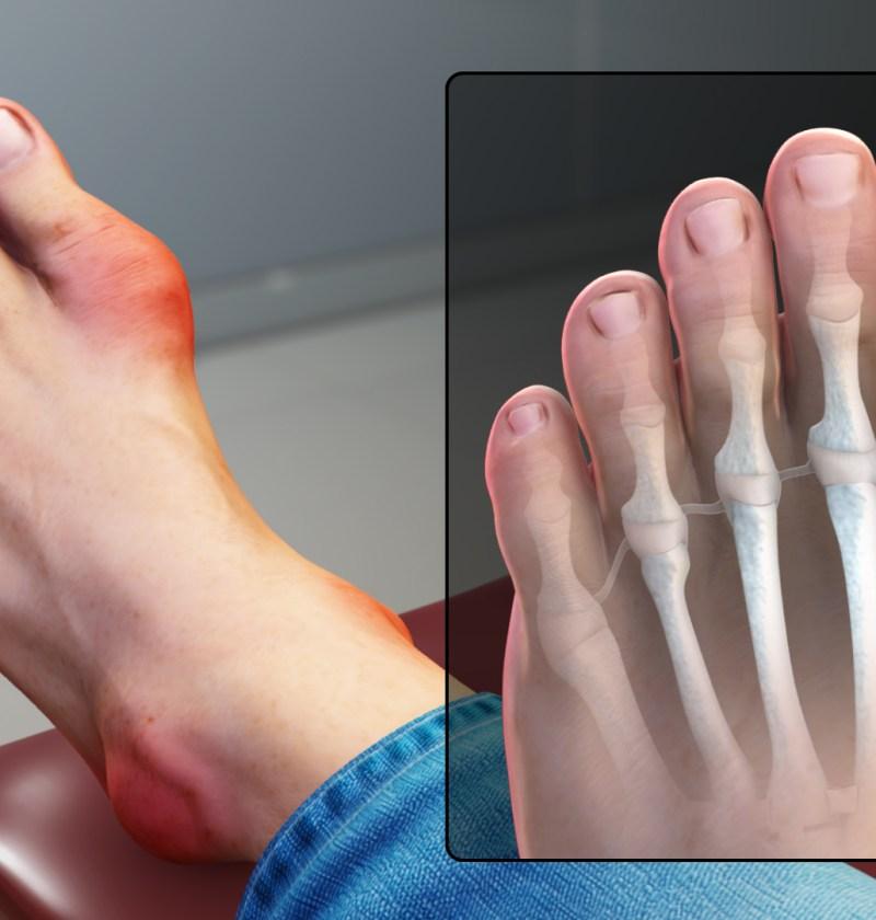 preparate pentru tratamentul articulațiilor degetelor de la picioare
