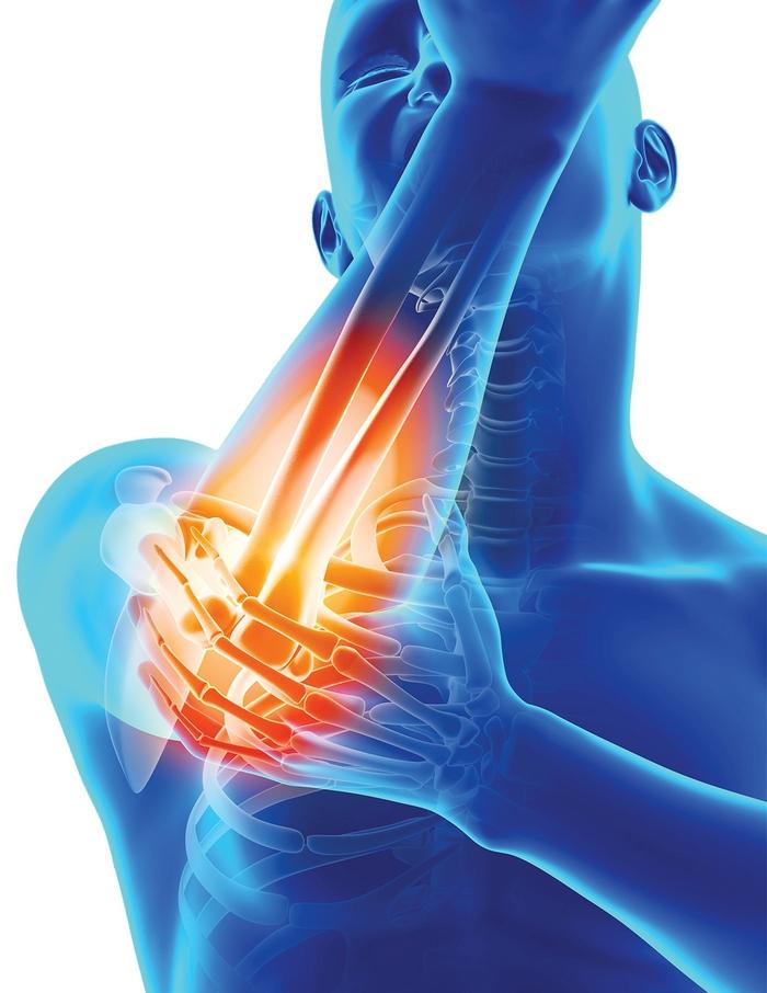 probleme musculare și articulare)