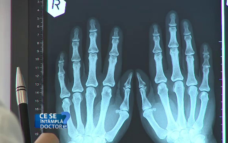 radiografie articulară pentru artrita reumatoidă)