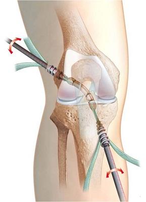 recuperare după coaserea ligamentelor la articulația genunchiului tratament comun în regiunea Neva
