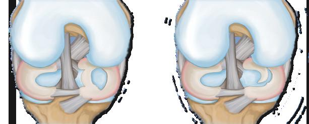 recuperare după coaserea ligamentelor la articulația genunchiului