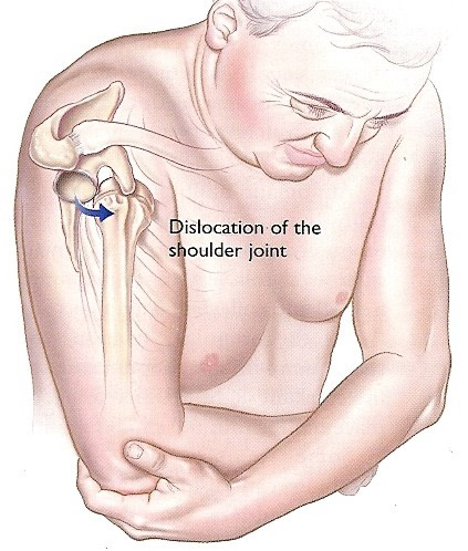 recuperare după luxația articulației umărului