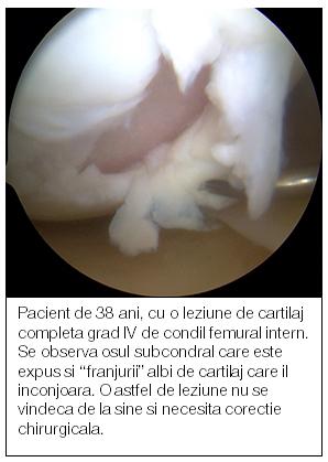 refacerea cartilajelor articulare)