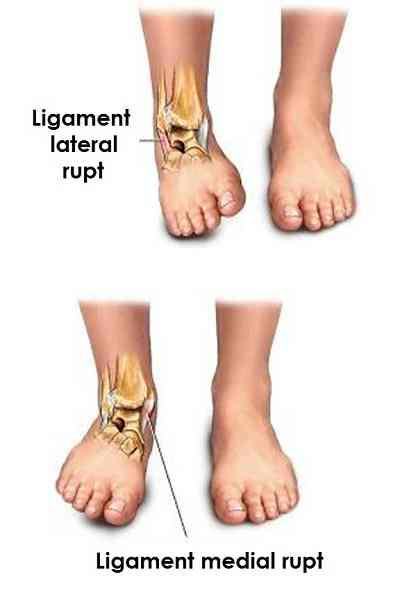 boli ale articulațiilor și mușchilor mâinilor articulația genunchiului doare pe interior
