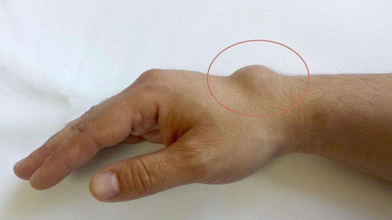 ruptura capsulei articulare a degetului cum se tratează)