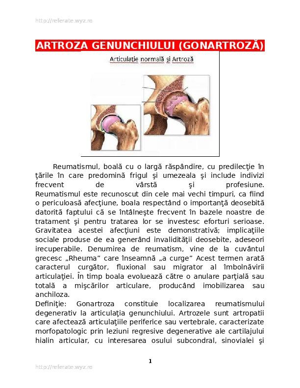 semne de artroză a gleznei