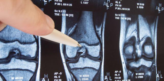 semne radiologice ale bolilor osoase și articulare)
