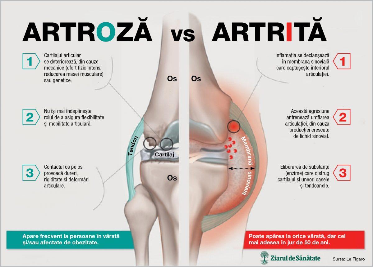 simptomele artritei și artrozei mâinilor