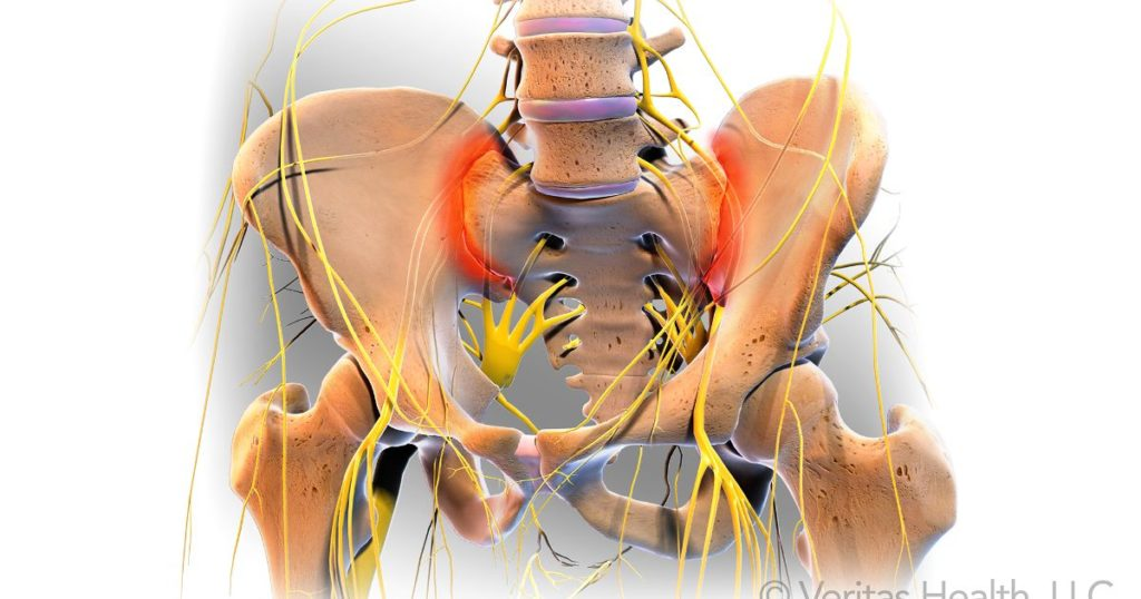 simptomele leziunilor articulare sacroiliace)