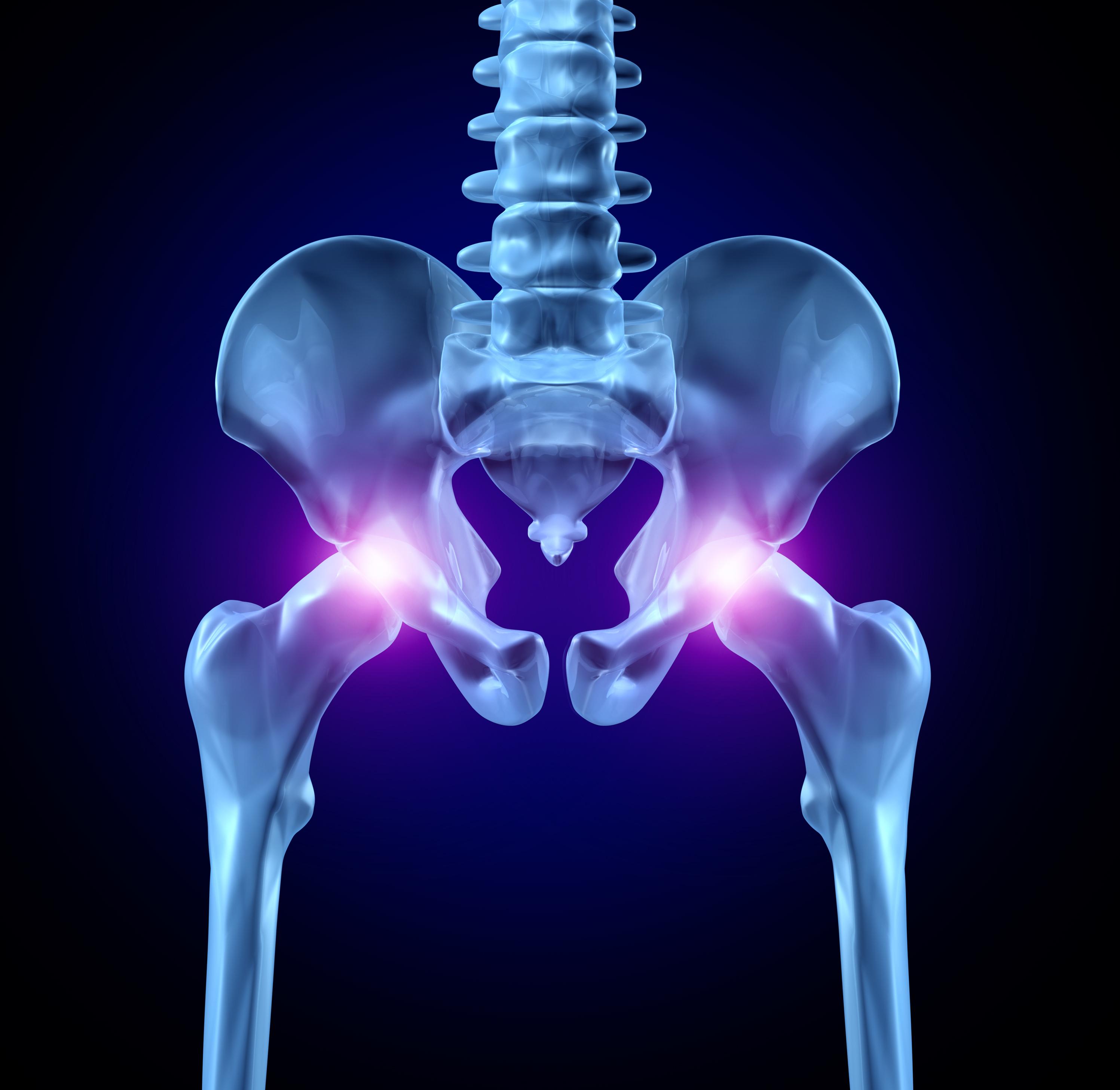 tratament eficient pentru artroza articulației șoldului